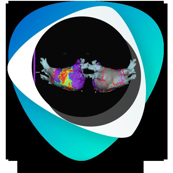 نقشه برداری سه بعدی قلب
